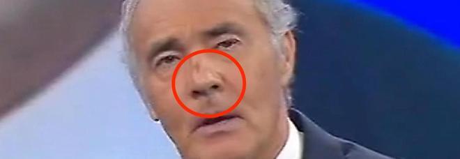 Massimo Giletti a Non è l'Arena con il volto tumefatto e ferita sul naso. Cosa è accaduto?