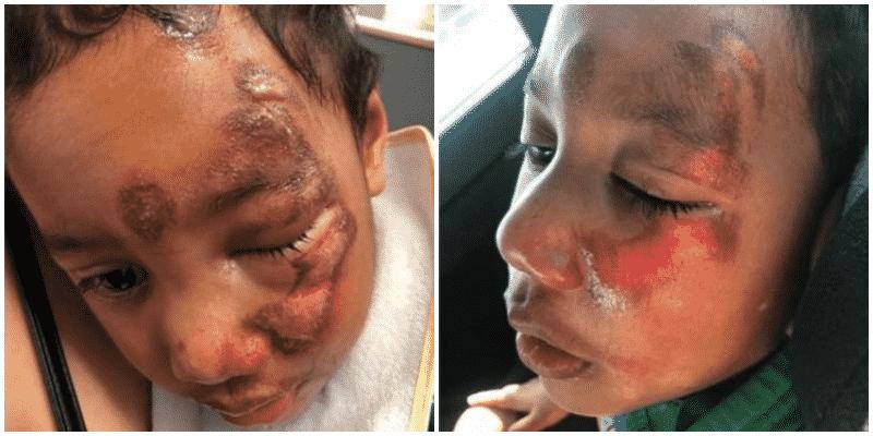Bambino con paralisi cerebrale con il viso deturpato da orribili bruciature, smascherata l'insegnante