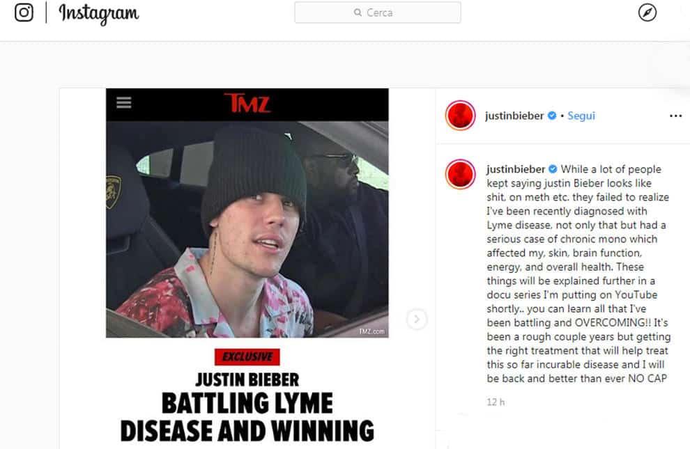 """Justin Bieber, confessione shock """"Sono malato"""": i fan preoccupati"""