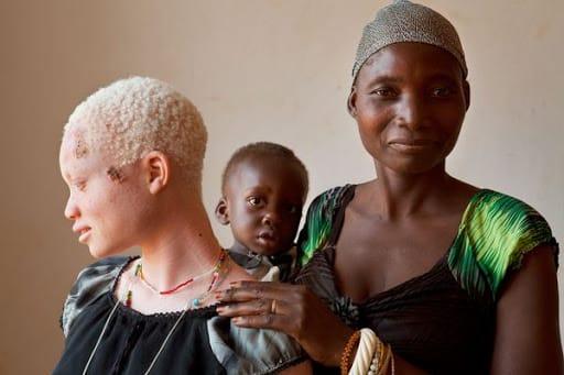 Albini uccisi in Africa per vendere le ossa: un corpo arriva a costare 75 mila euro